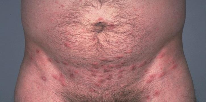 Псориаз в паху у женщин лечение 1