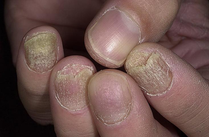 Лечение псориаза чистым солидолом как самым результативным средством