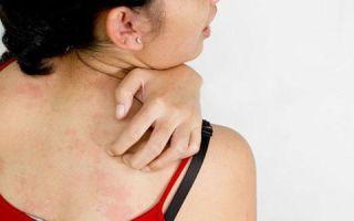 Чешется ли псориаз на теле при обострении болезни