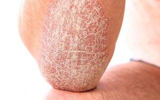Симптомы, определяющие стадии псориаза и особенности лечения