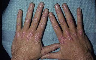 Эффективная схема лечения Псориаза на руках