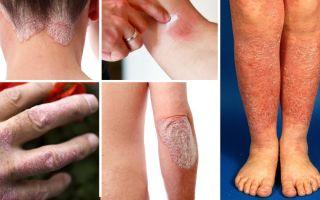 Главные отличия кожных заболеваний псориаза и дерматита между собой