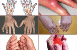 Что является причиной воспаления суставов — Псориатический артрит