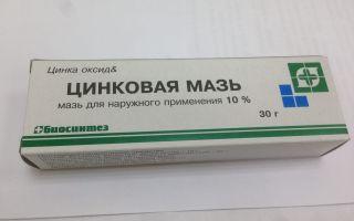 Доступная и популярная Цинковая мазь для лечения дерматологических проблем