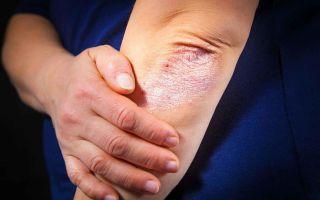 Симптоматика развития псориаза на нервной почве