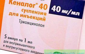 Противозудный препарат в форме таблеток и инъекций Кеналог