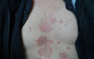 Редкая форма дерматологического заболевания — Псориаз на груди