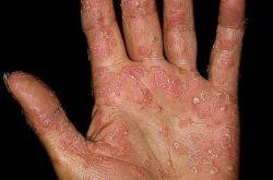 Хроническое неинфекционное заболевание — Ладонно-подошвенный псориаз