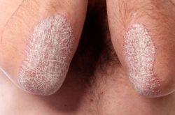 Особенности развития и симптоматики псориаза с поражением локтей