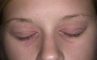 Редкое и доставляющее дискомфорт заболевание — Псориаз на глазах