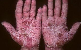 Все известные осложнения при псориазе, чем они грозят и как проявляются