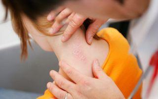Комплексная диагностика псориаза, что делать при первых симптомах