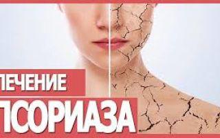 Кальципотриол: витаминное средство для лечения псориатических высыпаний