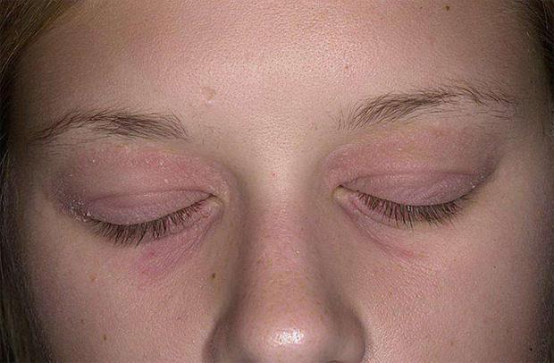 Псориаз вокруг глаз