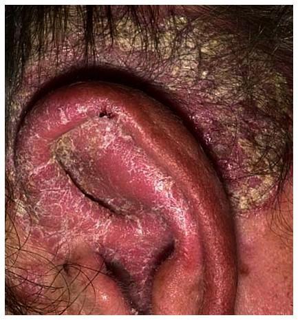 Псориаз на ушах